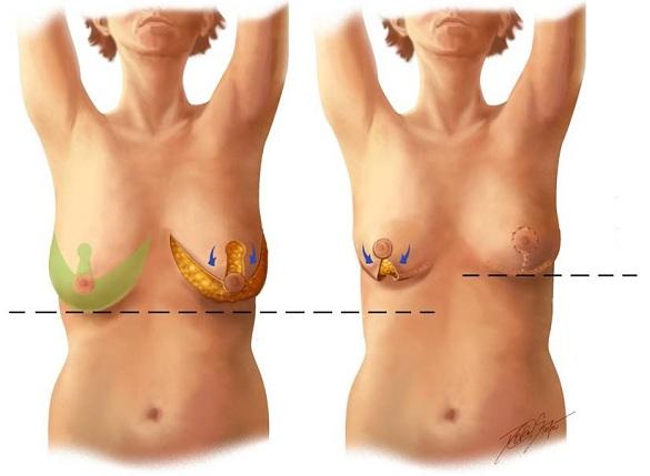 Как подготовить грудь во время беременности к кормлению